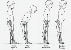 toe walking pathology
